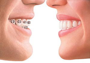 two mouths with invisalign and metal braces smiling