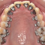 "My lingual ""tongue side"" braces"