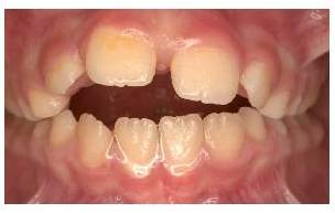 The role of speech therapy in Orthodontics part 2
