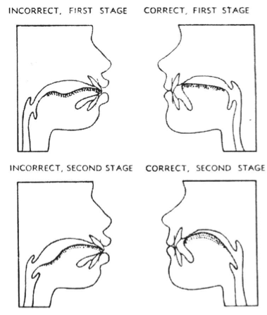 Tongue-thrust diagrams