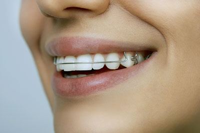 Wear Your Retainer After Braces
