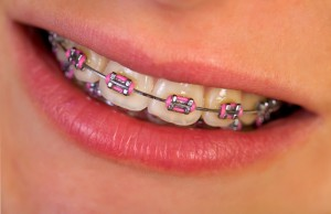 braces_closeup