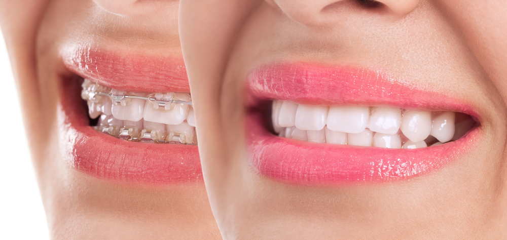 Maintaining Your Smile After Your Braces Come Off
