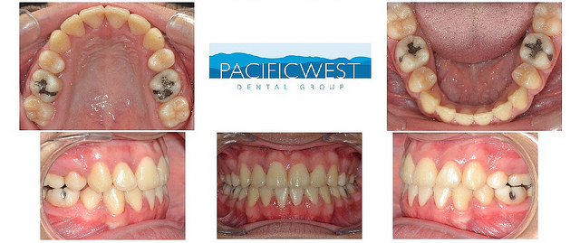What Will Your Teeth Look Like Before And After Braces