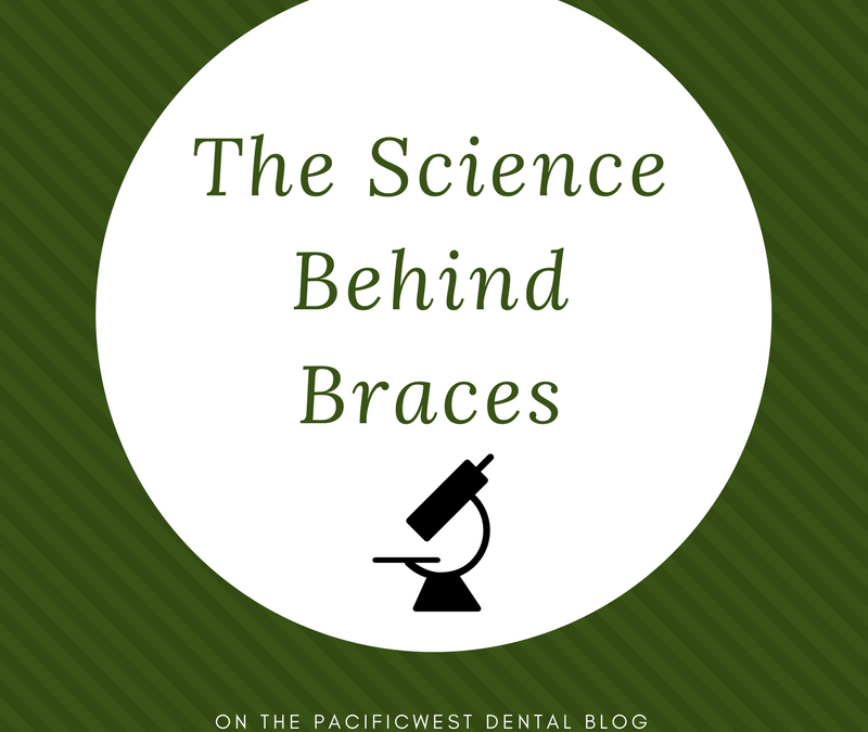 The Science Behind Braces