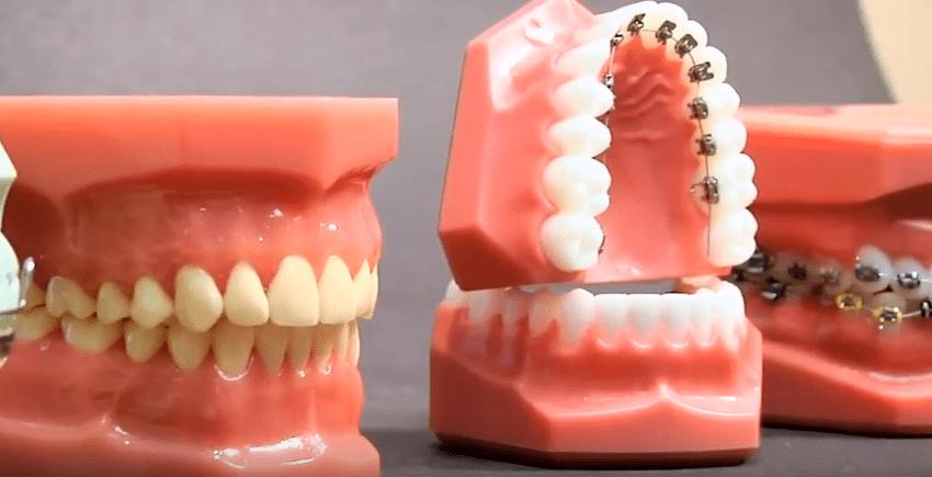 invisalign, lingual braces, braces