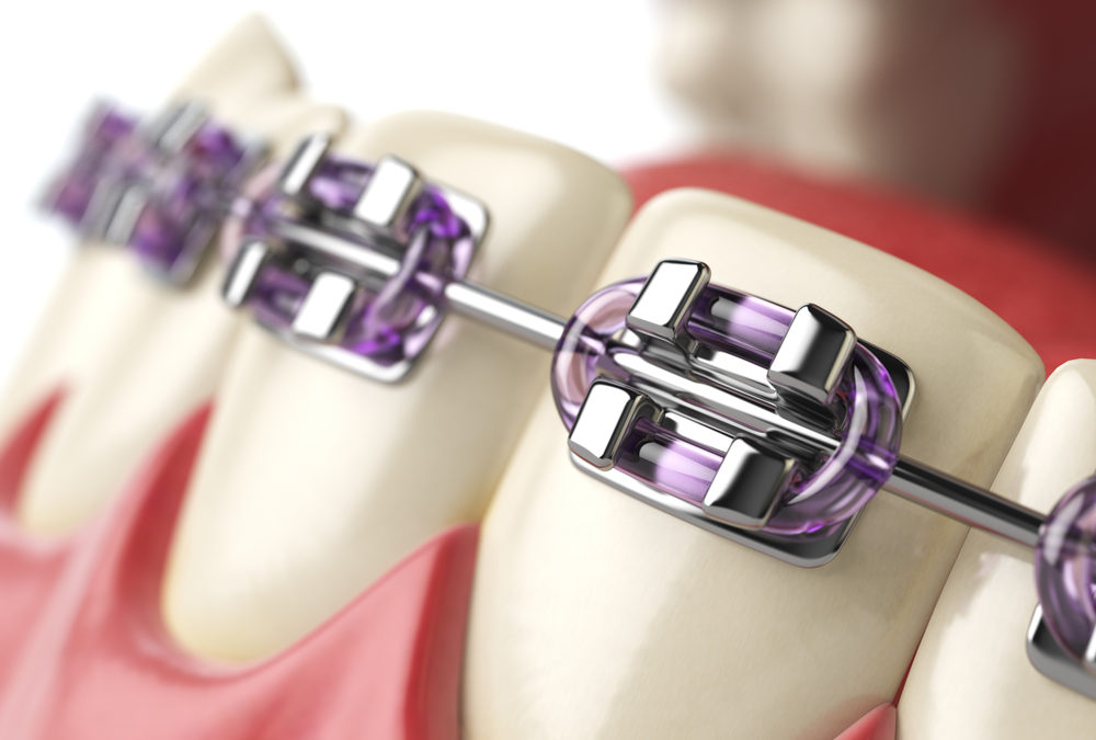 Does your health care plan cover orthodontics?
