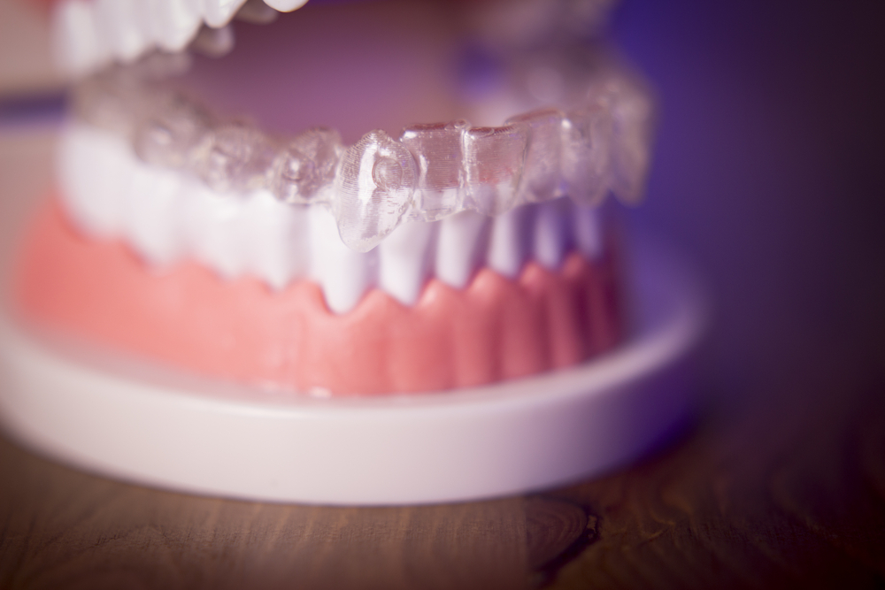 The Process of Getting Invisalign Braces: An Overview