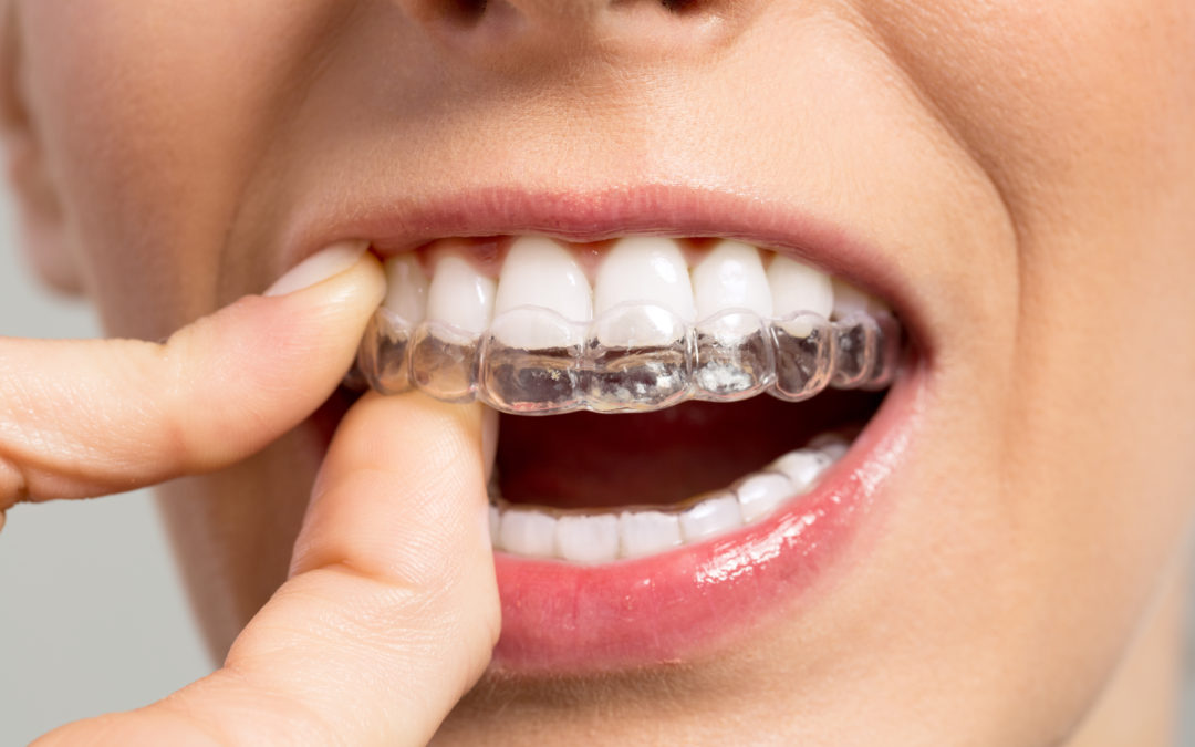 How Invisible Braces Work