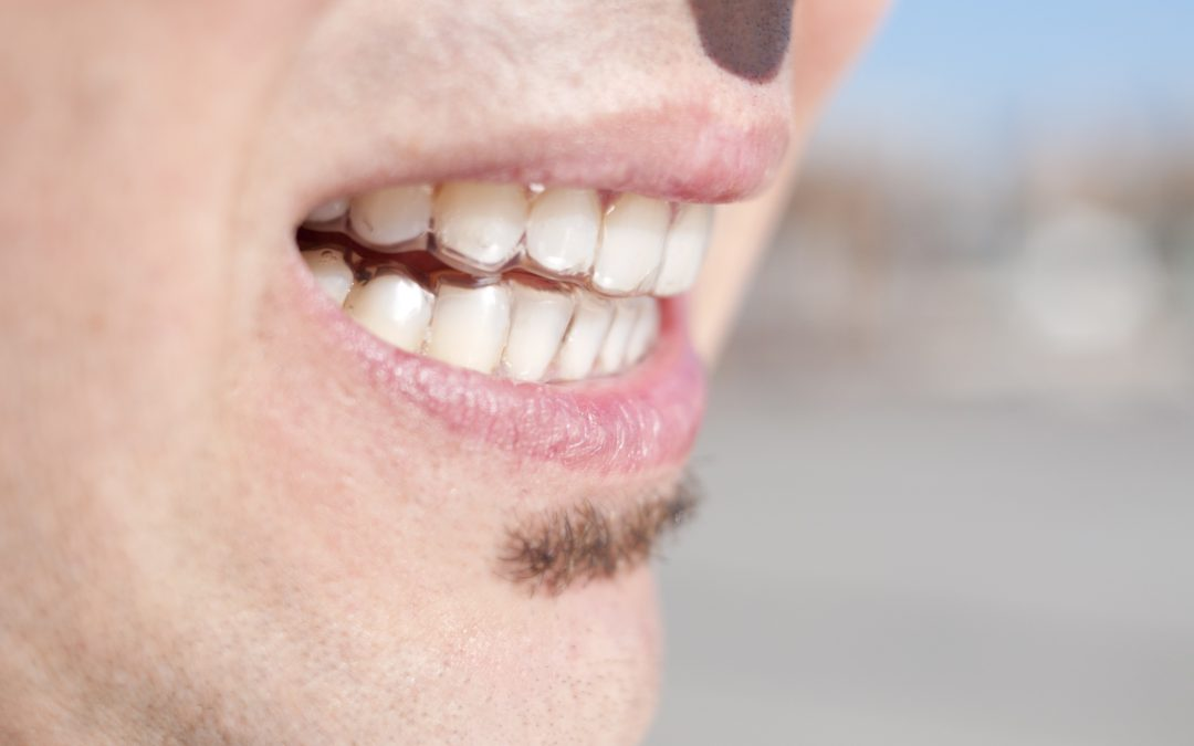 Common Causes of Poor Teeth Alignment