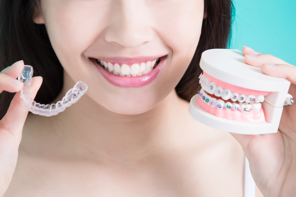 Clear Braces or Metal Braces – How to Choose?