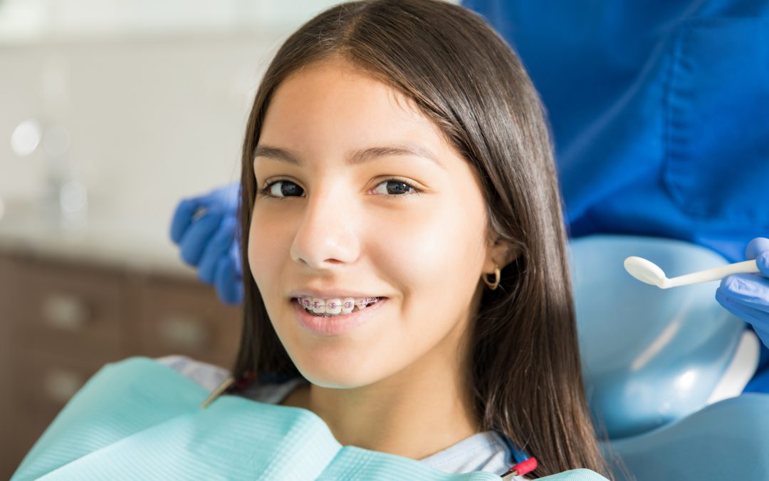 How Long Does it Take for Braces to Move Teeth?