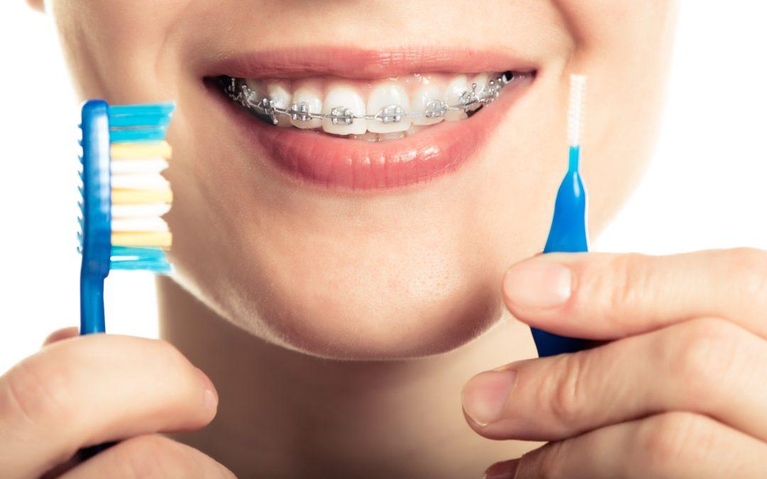 Tips to Keep Your Braces Clean