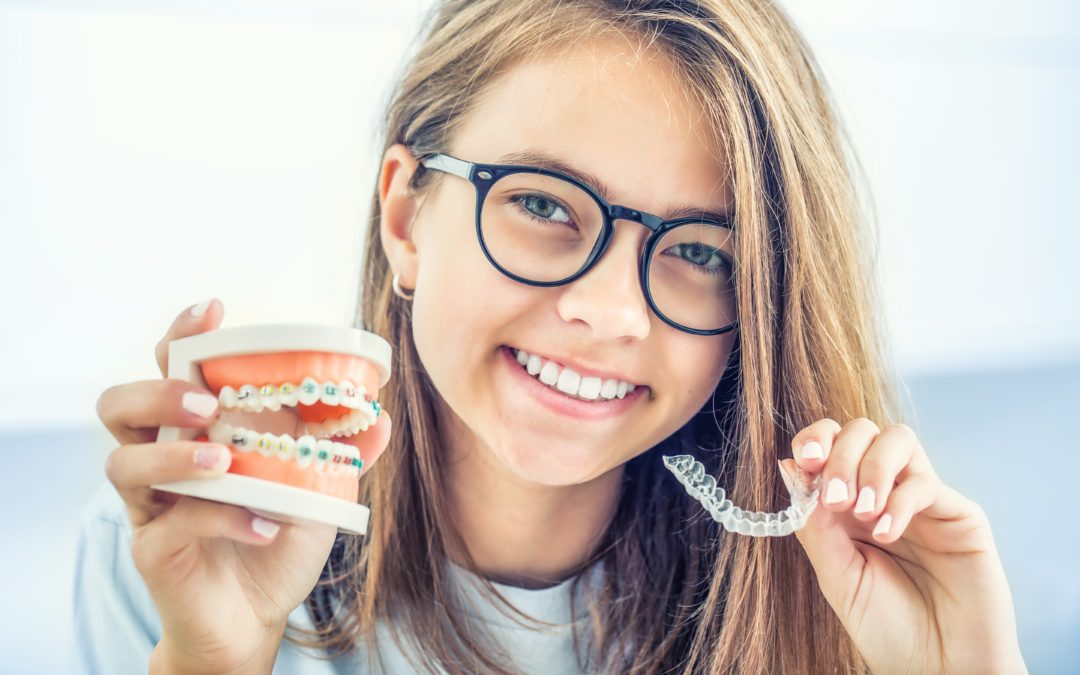 What Type of Braces Work the Fastest?